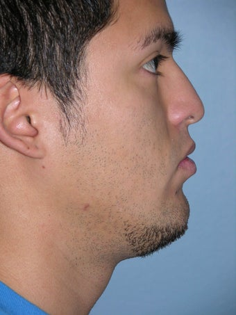 Male Rhinoplasty before 1346653