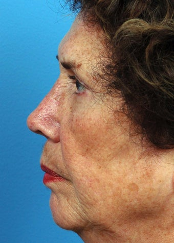 55-64 year old woman treated with Rhinoplasty after 2106953