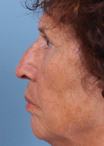 55-64 year old woman treated with Rhinoplasty before 2106953