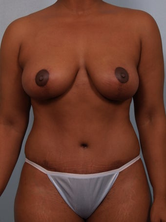 Breast Reduction after 693153
