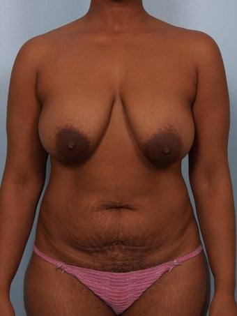Breast Reduction before 693153