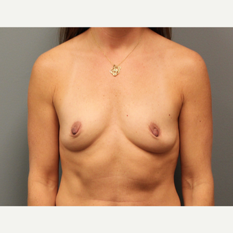 42 year old woman treated with Breast Augmentation before 3253847