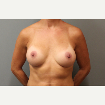 42 year old woman treated with Breast Augmentation after 3253847