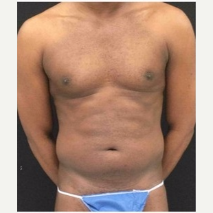 25-34 year old man treated with Liposuction