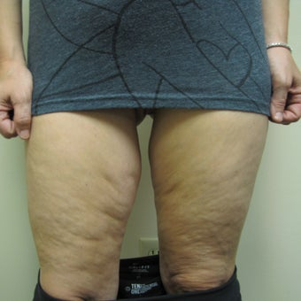 45-54 year old woman treated with Thigh Lift before 1986371