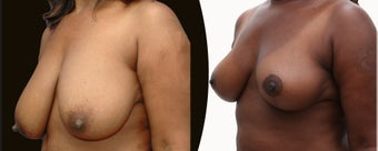 African American Breast Reduction