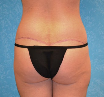Circumferential Body Lift 856570