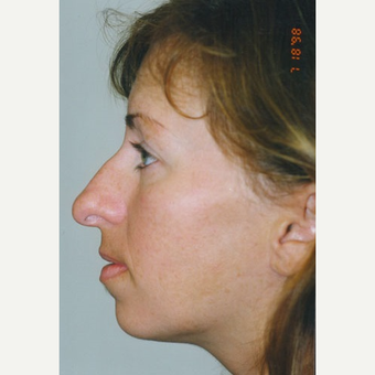 25-34 year old woman treated with Rhinoplasty before 3406146