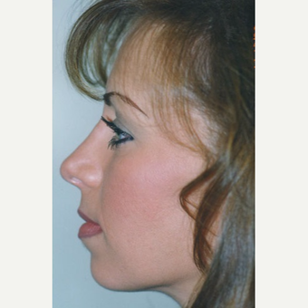 25-34 year old woman treated with Rhinoplasty after 3406146