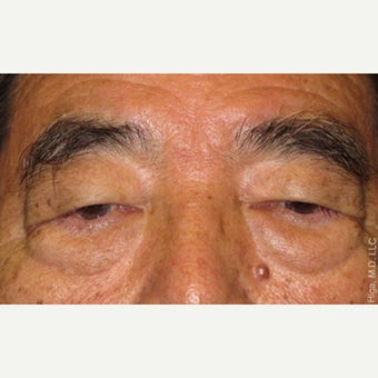 65-74 year old man treated with Asian Eyelid Surgery before 2539148