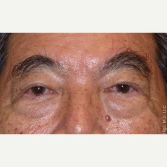 65-74 year old man treated with Asian Eyelid Surgery after 2539148