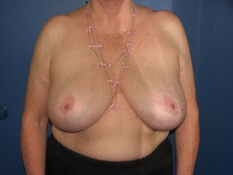 71 year old female with a vertical breast reduction after 997198