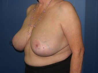 71 year old female with a vertical breast reduction 997198