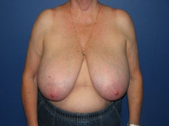 71 year old female with a vertical breast reduction before 997198