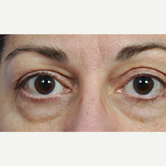 35-44 year old woman treated with Eyelid Surgery before 3761591