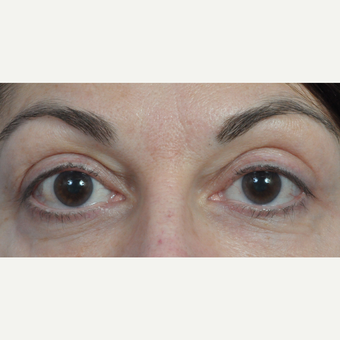 35-44 year old woman treated with Eyelid Surgery after 3761591
