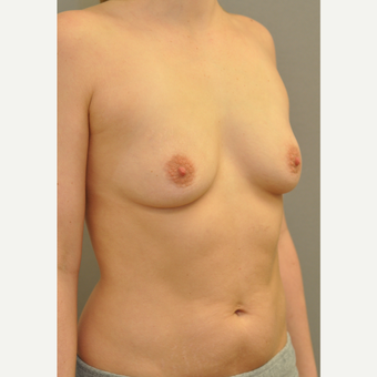 25-34 year old woman treated with Breast Augmentation before 3842503
