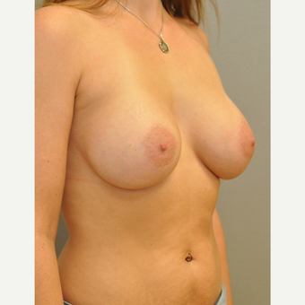 25-34 year old woman treated with Breast Augmentation after 3842503