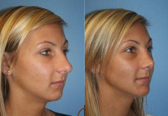 Primary Rhinoplasty after 450426
