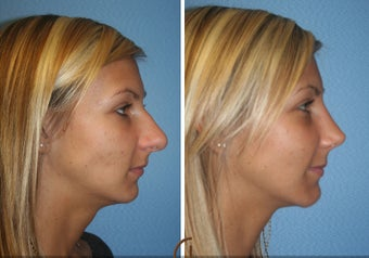Primary Rhinoplasty before 450426