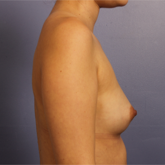 25-34 year old woman treated with Breast Augmentation before 3657239