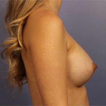 25-34 year old woman treated with Breast Augmentation after 3657239