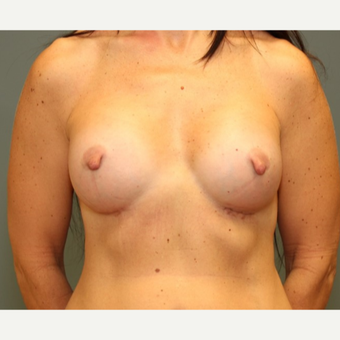 45-54 year old woman treated with Breast Augmentation after 3031170