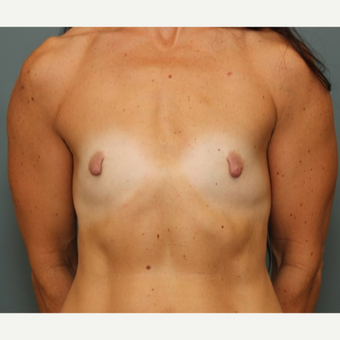 45-54 year old woman treated with Breast Augmentation before 3031170