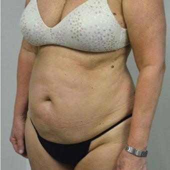 65-74 year old woman treated with Tummy Tuck before 2149098