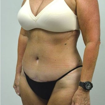 65-74 year old woman treated with Tummy Tuck after 2149098