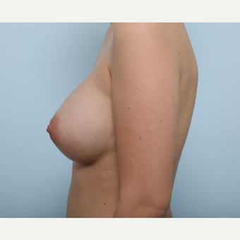 Breast Augmentation after 3425427