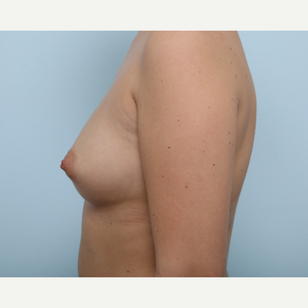 Breast Augmentation before 3425427