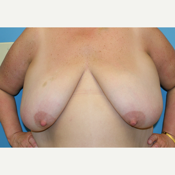 50 year old woman treated with Breast Reduction before 3582062