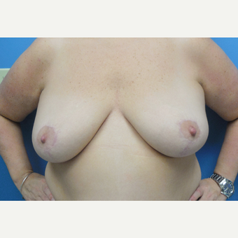 50 year old woman treated with Breast Reduction after 3582062