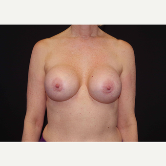 55-64 year old woman treated with Breast Implants before 3441687