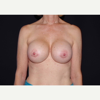 55-64 year old woman treated with Breast Implants after 3441687