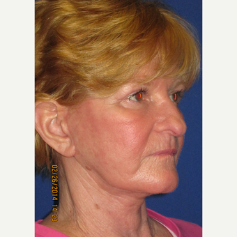 65 year old woman treated with Face Lift, Upper Lid Blepharoplasty, and Fractional CO2 Laser after 3429375