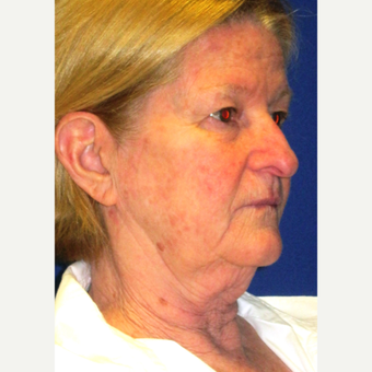 65 year old woman treated with Face Lift, Upper Lid Blepharoplasty, and Fractional CO2 Laser before 3429375