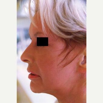 35-44 year old woman treated with Chemical Peel after 3543945