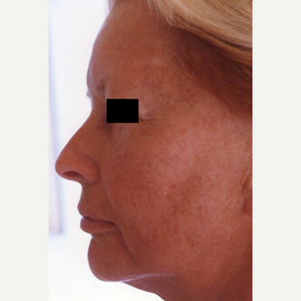 35-44 year old woman treated with Chemical Peel before 3543945
