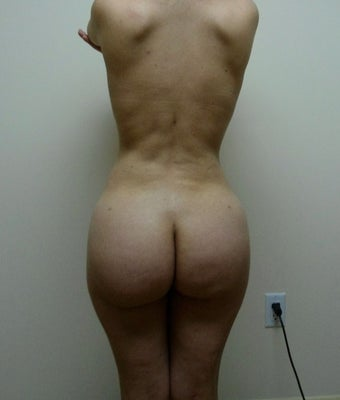 25-34 year old woman treated with Brazilian Butt Lift after 1695940