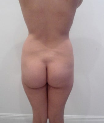 25-34 year old woman treated with Brazilian Butt Lift before 1695940
