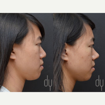 18-24 year old woman treated with Asian Rhinoplasty before 3622598