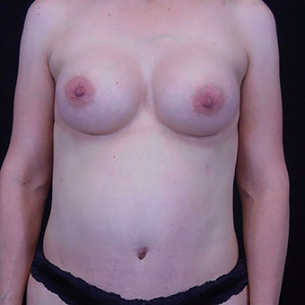 35-44 year old woman treated with Mommy Makeover after 3125597