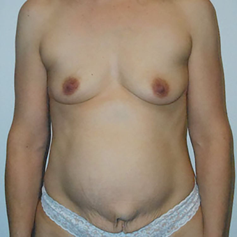 35-44 year old woman treated with Mommy Makeover before 3125597