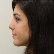 18-24 year old woman treated with Rhinoplasty after 3459429