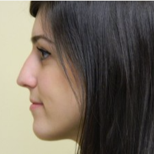 18-24 year old woman treated with Rhinoplasty before 3459429
