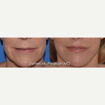 55-64 year old woman treated with Lip Lift before 3821486