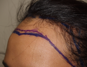 25-34 year old woman treated with Surgical Hairline Advancement