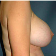 33 year old woman treated with Breast Lift with Implants after 3666000
